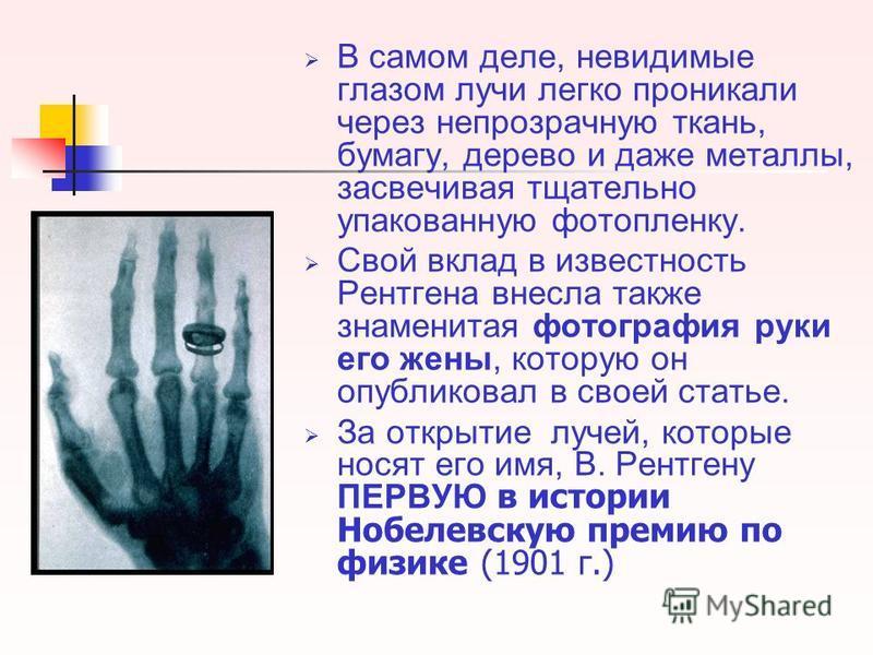 В самом деле, невидимые глазом лучи легко проникали через непрозрачную ткань, бумагу, дерево и даже металлы, засвечивая тщательно упакованную фотопленку. Свой вклад в известность Рентгена внесла также знаменитая фотография руки его жены, которую он о