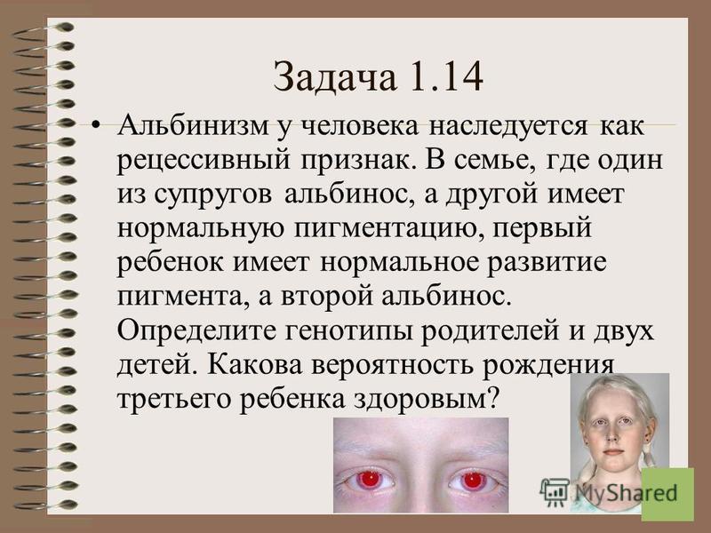 16 Задача 1.14 Альбинизм у человека наследуется как рецессивный признак. В семье, где один из супругов альбинос, а другой имеет нормальную пигментацию, первый ребенок имеет нормальное развитие пигмента, а второй альбинос. Определите генотипы родителе