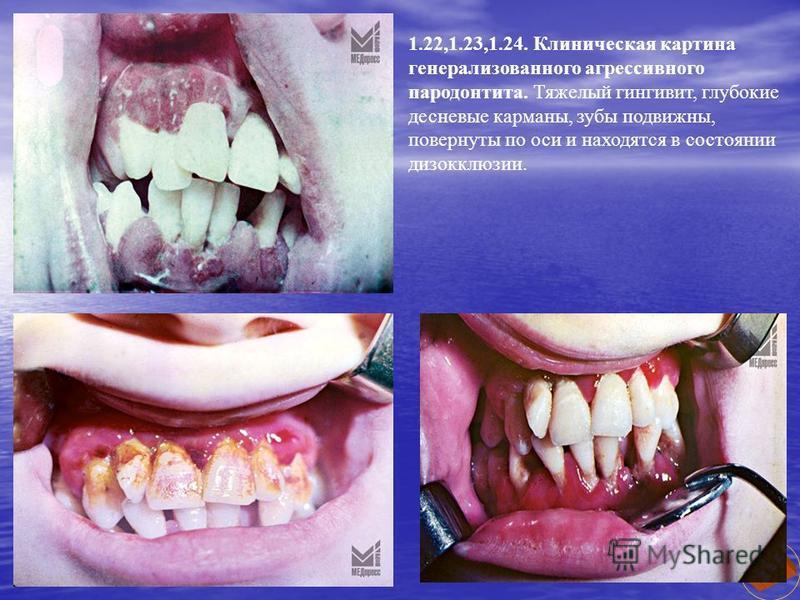 1.22,1.23,1.24. Клиническая картина генерализованного агрессивного пародонтита. Тяжелый гингивит, глубокие десневые карманы, зубы подвижны, повернуты по оси и находятся в состоянии дизокклюзии.