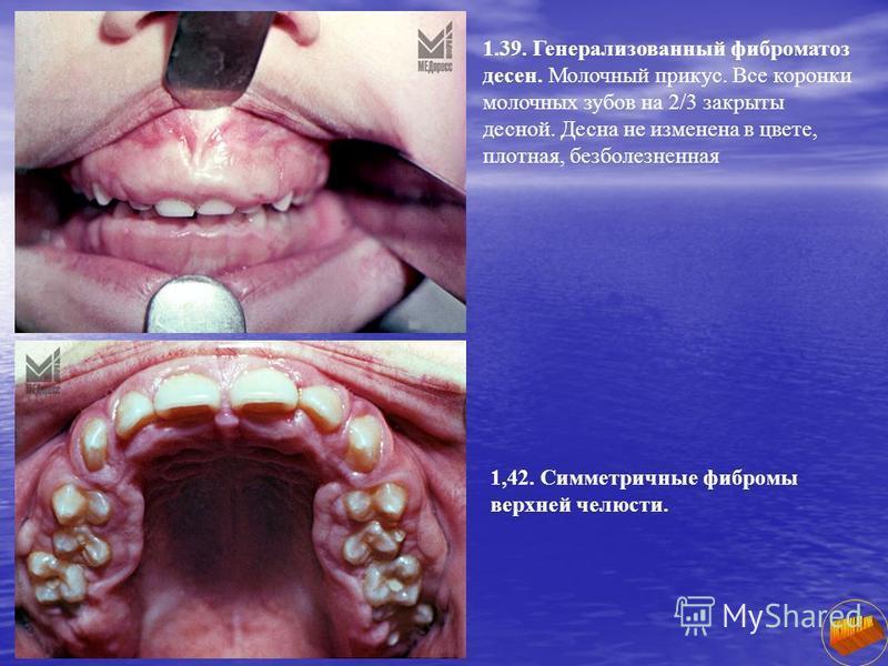 1.39. Генерализованный фиброматоз десен. Молочный прикус. Все коронки молочных зубов на 2/3 закрыты десной. Десна не изменена в цвете, плотная, безболезненная 1,42. Симметричные фибромы верхней челюсти.