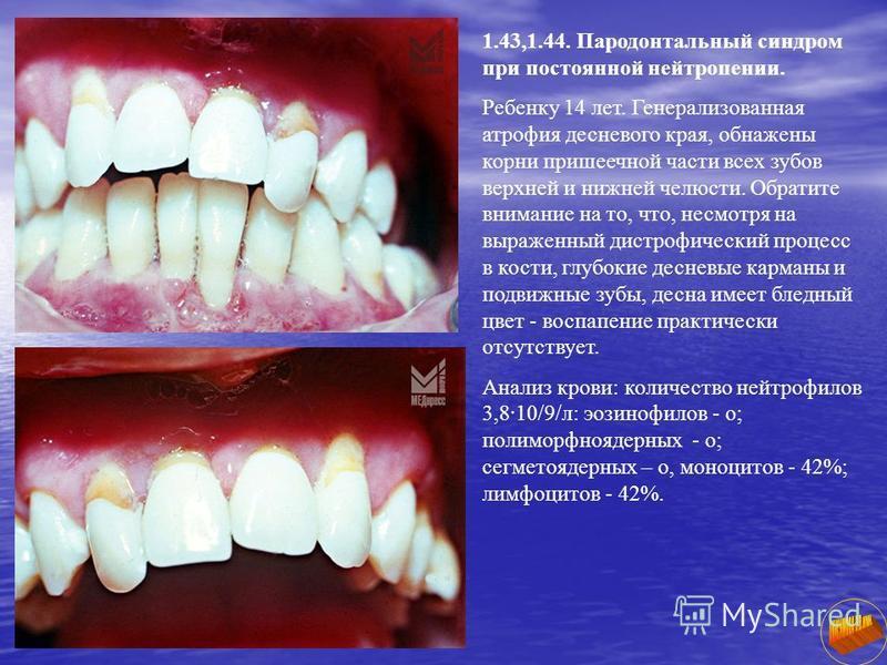 1.43,1.44. Пародонтальный синдром при постоянной нейтропении. Ребенку 14 лет. Генерализованная атрофия десневого края, обнажены корни пришеечной части всех зубов верхней и нижней челюсти. Обратите внимание на то, что, несмотря на выраженный дистрофич