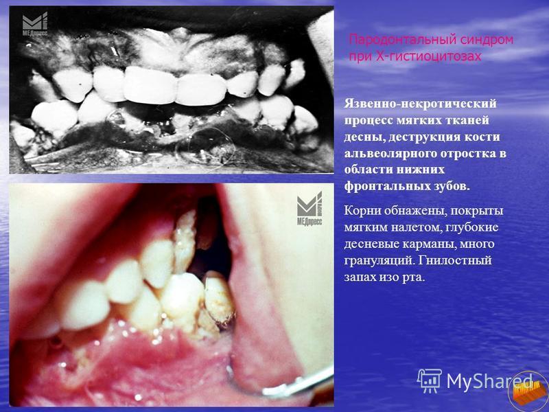 Пародонтальный синдром при Х-гистиоцитозах Язвенно-некротический процесс мяrкиx тканей десны, деструкция кости альвеолярного отростка в области нижних фронтальных зубов. Корни обнажены, покрыты мягким налетом, глубокие десневые карманы, много грануля