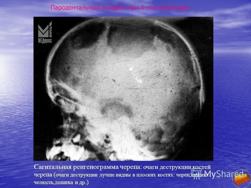 Сагитальная рентгенограмма черепа: очаги деструкции костей черепа ( очаги деструкции лучше видны в плоских костях: череп,нижняя челюсть,лопатка и др.)