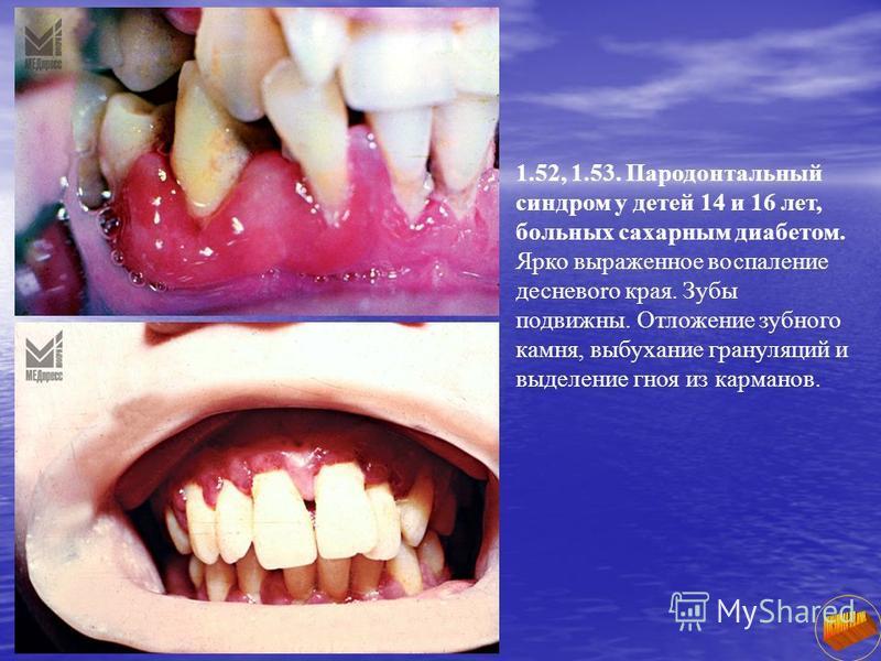 1.52, 1.53. Пародонтальный синдром у детей 14 и 16 лет, больных сахарным диабетом. Ярко выраженное воспаление десневоro края. Зубы подвижны. Отложение зубного камня, выбухание грануляций и выделение гноя из карманов.