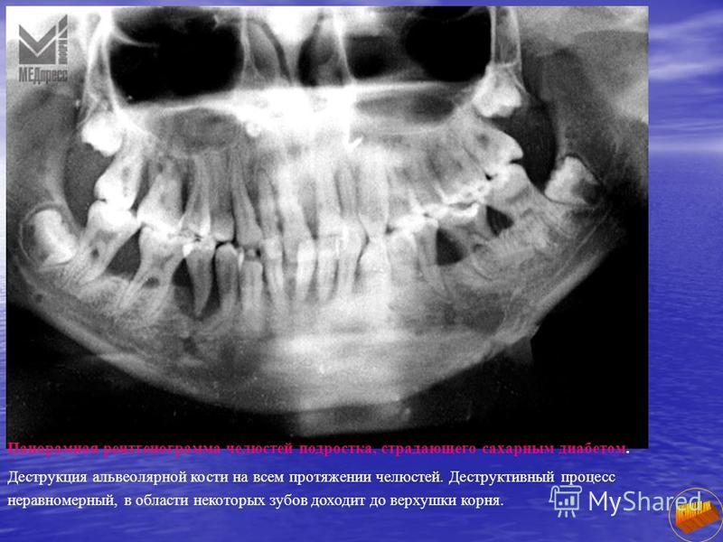 Панорамная рентгенограмма челюстей подростка, страдающего сахарным диабетом. Деструкция альвеолярной кости на всем протяжении челюстей. Деструктивный процесс неравномерный, в области некоторых зубов доходит до верхушки корня.