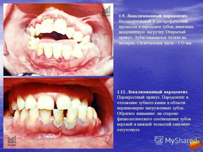 1.9. Локализованный пародонтит. Воспалительный и дистрофический процессы в пародонте зубов, имеющих неадекватную нагрузку. Открытый прикус. Зубы смыкаются только на молярах. Сагиттальная щель - 1 О мм. 1.12. Локализованный пародонтит. Перекрестный пр