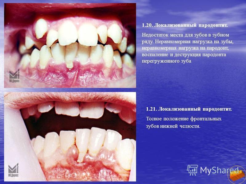 1.20. Локализованный пародонтит. Недостаток места для зубов в зубном ряду. Неравномерная нагрузка на зубы, неравномерная нагрузка на пародонт, воспаление и деструкция пародонта перегруженного зуба 1.21. Локализованный пародонтит. Тссное положение фро
