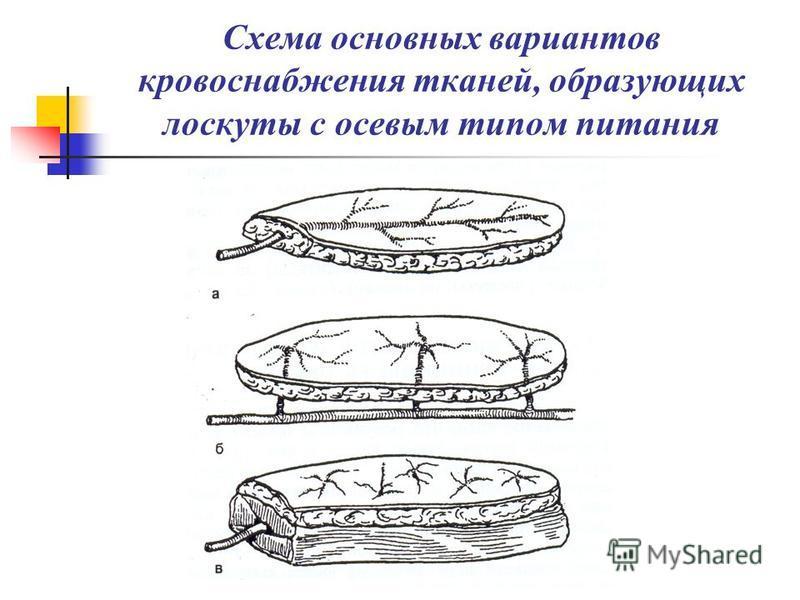 Схема основных вариантов кровоснабжения тканей, образующих лоскуты с осевым типом питания