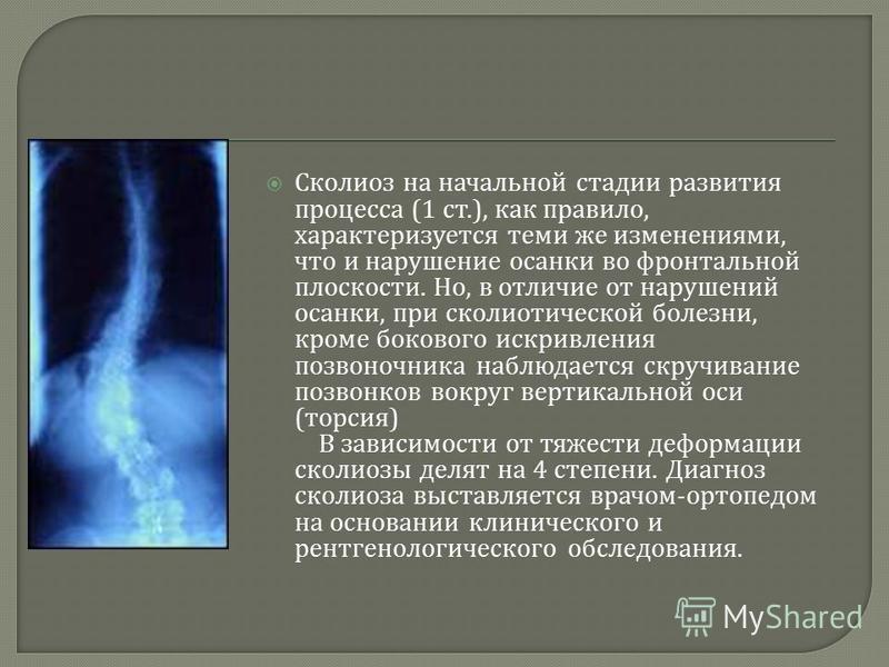 Сколиоз на начальной стадии развития процесса (1 ст.), как правило, характеризуется теми же изменениями, что и нарушение осанки во фронтальной плоскости. Но, в отличие от нарушений осанки, при сколиотической болезни, кроме бокового искривления позвон