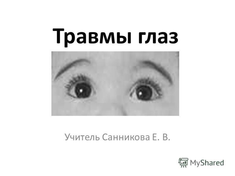 Травмы глаз Учитель Санникова Е. В.