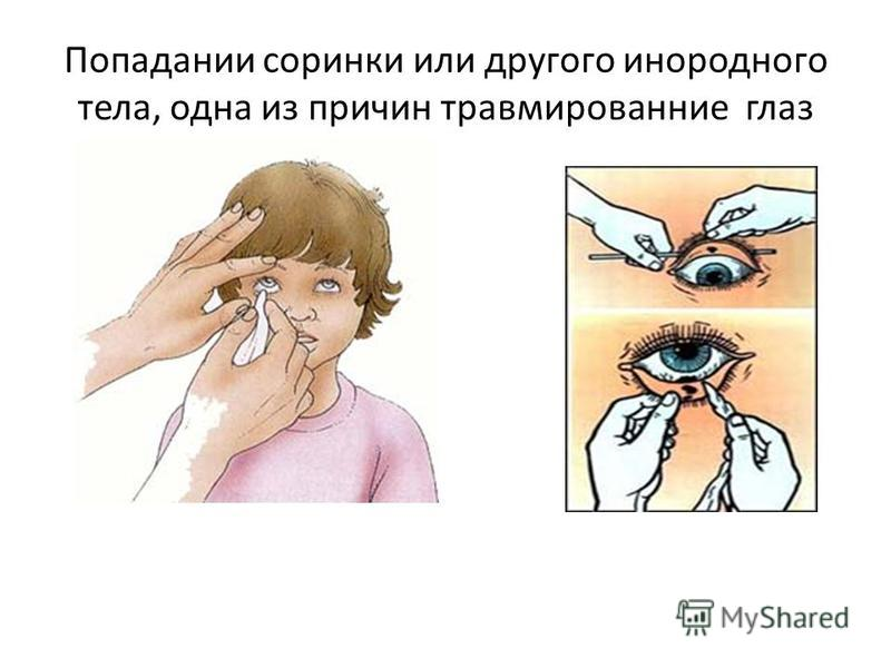 Попадании соринки или другого инородного тела, одна из причин травмирование глаз