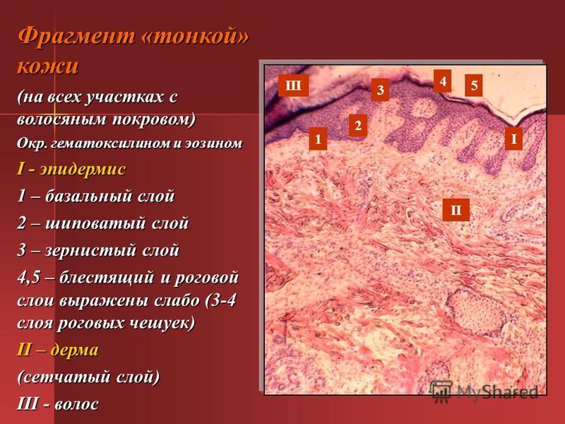 Фрагмент «тонкой» кожи (на всех участках с волосяным покровом) Окр. гематоксилином и эозином I - эпидермис 1 – базальный слой 2 – шиповатый слой 3 – зернистый слой 4,5 – блестящий и роговой слои выражены слабо (3-4 слоя роговых чешуек) II – дерма (се