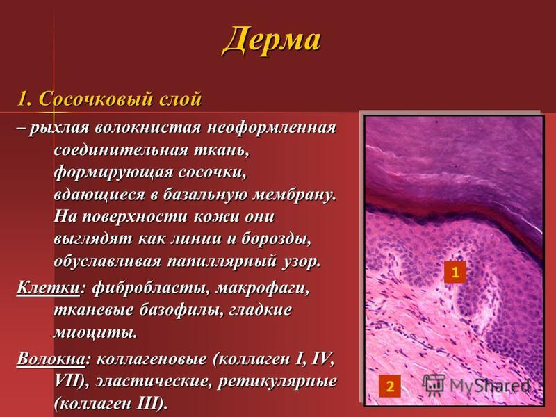 Дерма 1. Сосочковый слой – рыхлая волокнистая неоформленная соединительная ткань, формирующая сосочки, вдающиеся в базальную мембрану. На поверхности кожи они выглядят как линии и борозды, обуславливая папиллярный узор. Клетки: фибробласты, макрофаги