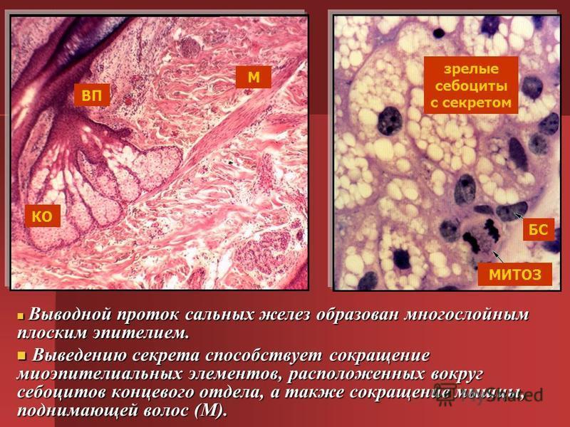 Выводной проток сальных желез образован многослойным плоским эпителием. Выводной проток сальных желез образован многослойным плоским эпителием. Выведению секрета способствует сокращение миоэпителиальных элементов, расположенных вокруг себоцитов конце
