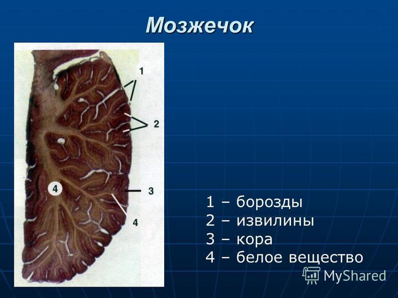 Мозжечок 1 – борозды 2 – извилины 3 – кора 4 – белое вещество