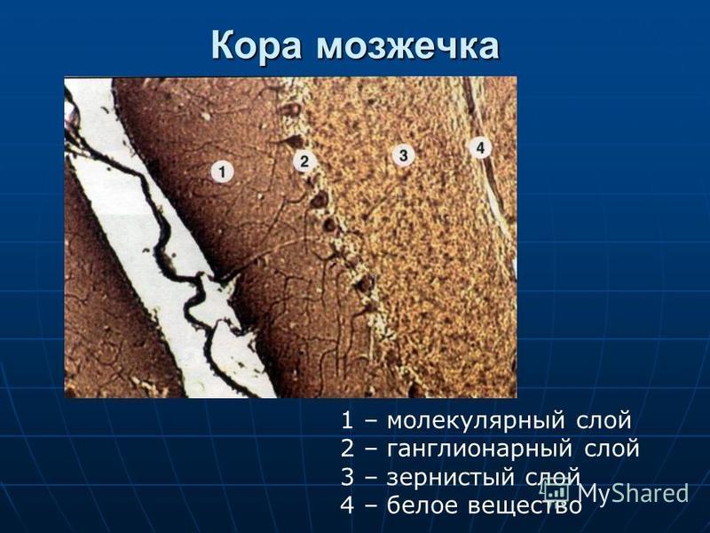 Кора мозжечка 1 – молекулярный слой 2 – ганглионарный слой 3 – зернистый слой 4 – белое вещество