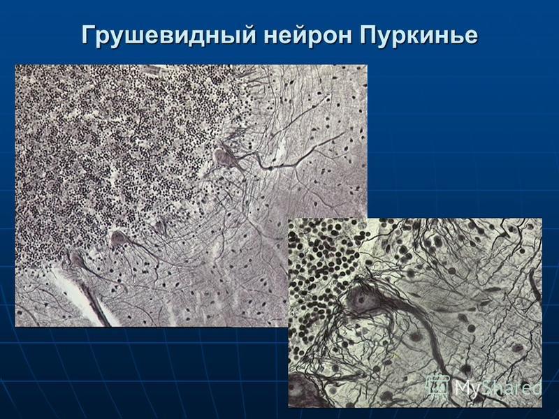 Грушевидный нейрон Пуркинье