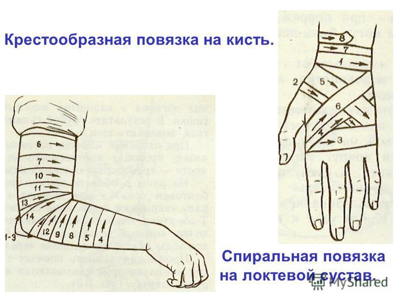 Крестообразная повязка на кисть. Спиральная повязка на локтевой сустав.