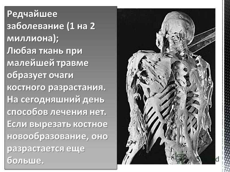 Редчайшее заболевание (1 на 2 миллиона); Любая ткань при малейшей травме образует очаги костного разрастания. На сегодняшний день способов лечения нет. Если вырезать костное новообразование, оно разрастается еще больше. Редчайшее заболевание (1 на 2