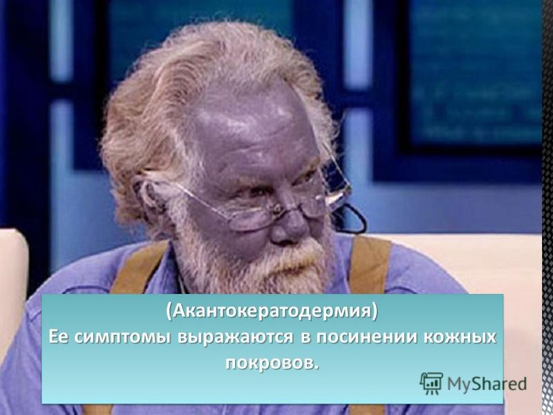 (Акантокератодермия) Ее симптомы выражаются в посинении кожных покровов. (Акантокератодермия)
