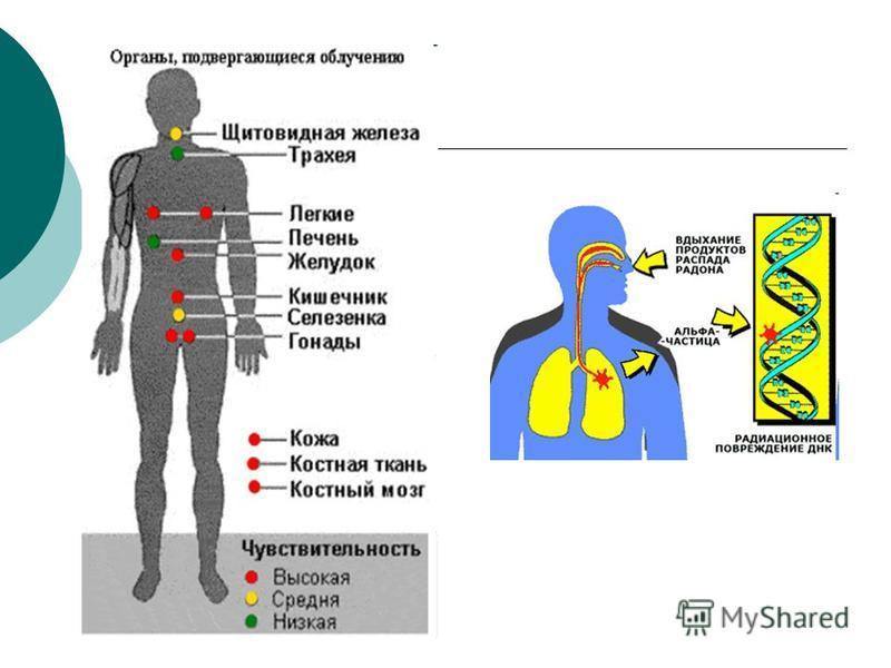 Радиационные эффекты облучения человека. Соматические (телесные) - возникающие в организме человека, который подвергался облучению: * острая и хроническая лучевая болезнь * лучевой ожог, катаракта глаз, повреждение половых органов. Соматико-стохастич