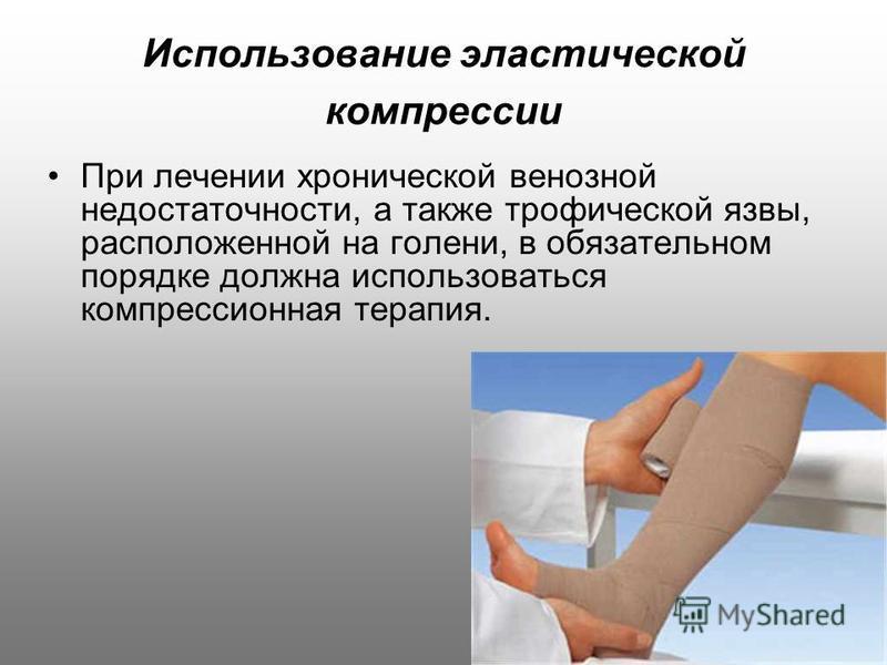 Использование эластической компрессии При лечении хронической венозной недостаточности, а также трофической язвы, расположенной на голени, в обязательном порядке должна использоваться компрессионная терапия.