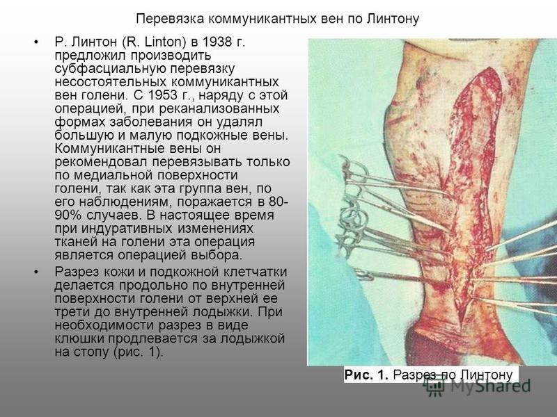 Р. Линтон (R. Linton) в 1938 г. предложил производить субфасциальную перевязку несостоятельных коммуникантных вен голени. С 1953 г., наряду с этой операцией, при реканализованных формах заболевания он удалял большую и малую подкожные вены. Коммуникан