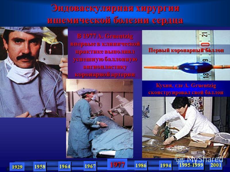 1929 1977 В 1977 A. Gruentzig впервые в клинической практике выполнил успешную баллонную ангиопластику коронарной артерии Кухня, где A. Gruentzig сконструировал свой баллон Первый коронарный баллон Эндоваскулярная хирургия ишемической болезни сердца