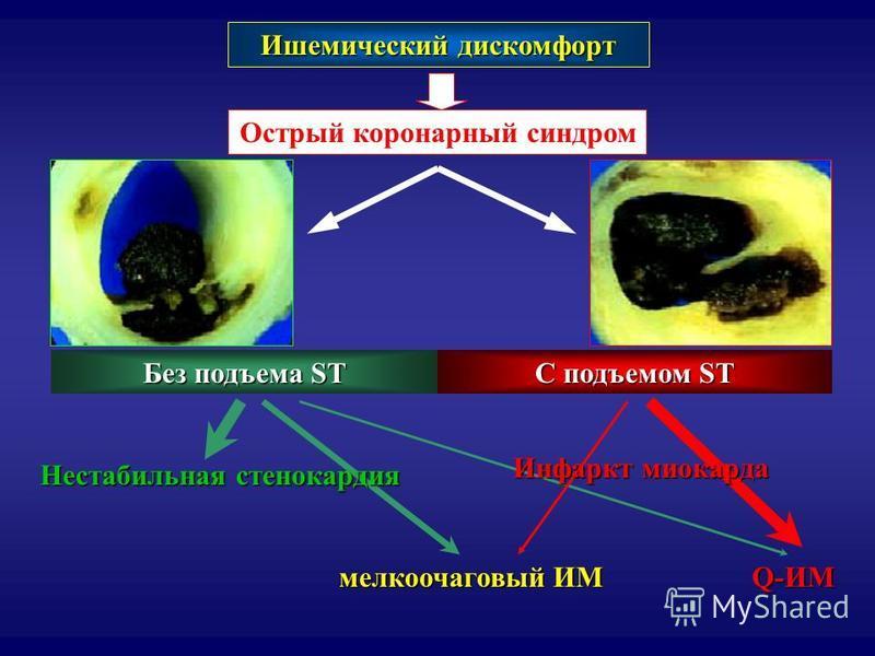 Ишемический дискомфорт Острый коронарный синдром C подъемом ST Без подъема ST мелкоочаговый ИМ Q-ИМ Нестабильная стенокардия Инфаркт миокарда