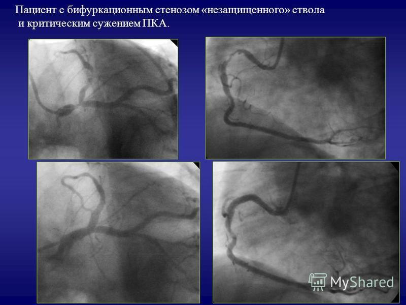 Пациент с бифуркационным стенозом «незащищенного» ствола и критическим сужением ПКА.