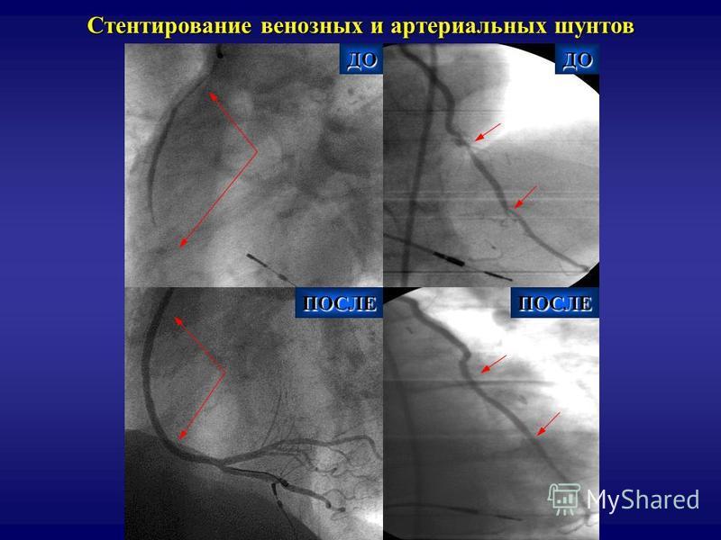 Стентирование венозных и артериальных шунтов ДОДО ПОСЛЕПОСЛЕ