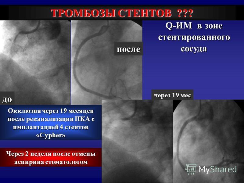 через 19 мес до после Окклюзия через 19 месяцев после реканализации ПКА с имплантацией 4 стентов «Cypher» Q-ИМ в зоне стентированного сосуда ТРОМБОЗЫ СТЕНТОВ ??? Через 2 недели после отмены аспирина стоматологом