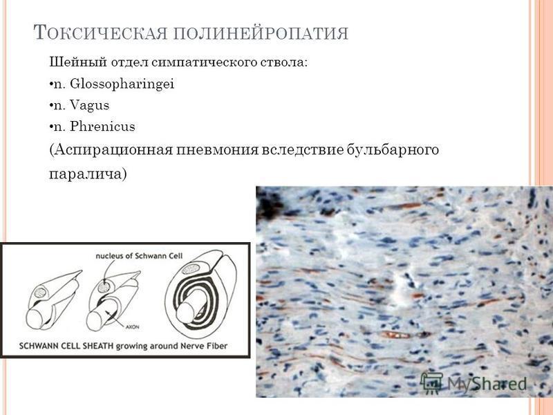 Шейный отдел симпатического ствола: n. Glossopharingei n. Vagus n. Phrenicus (Аспирационная пневмония вследствие бульбарного паралича) Т ОКСИЧЕСКАЯ ПОЛИНЕЙРОПАТИЯ