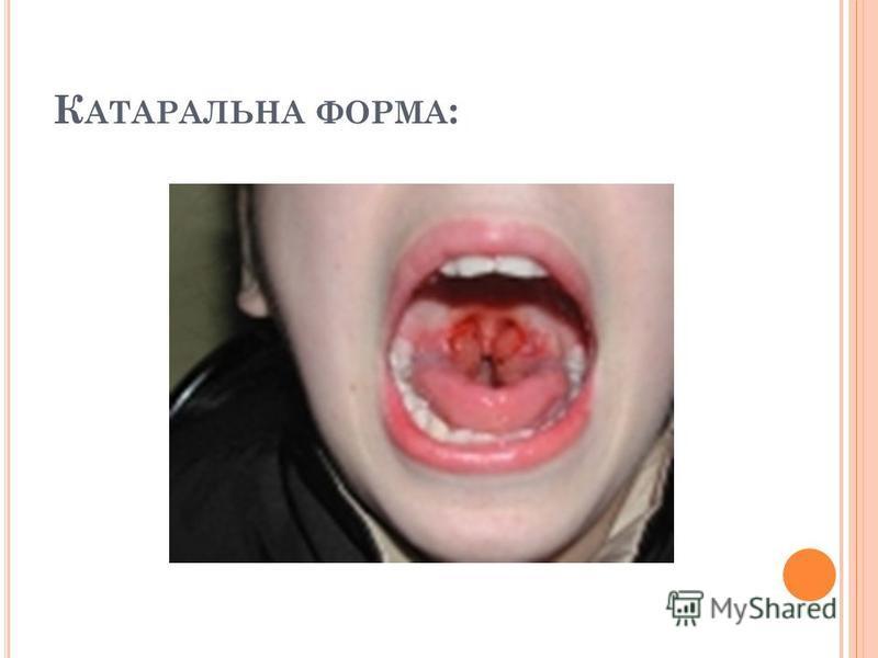 К АТАРАЛЬНА ФОРМА :