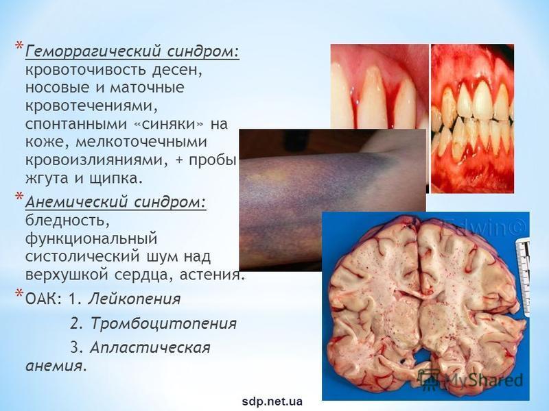 * Геморрагический синдром: кровоточивость десен, носовые и маточные кровотечениями, спонтанными «синяки» на коже, мелкоточечными кровоизлияниями, + пробы жгута и щипка. * Анемический синдром: бледность, функциональный систолический шум над верхушкой
