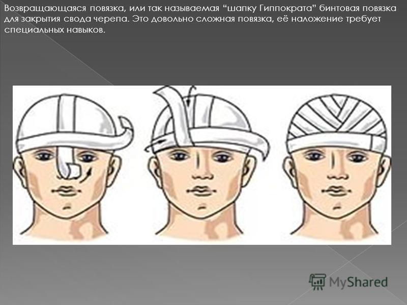 Возвращающаяся повязка, или так называемая шапку Гиппократа бинтовая повязка для закрытия свода черепа. Это довольно сложная повязка, её наложение требует специальных навыков.