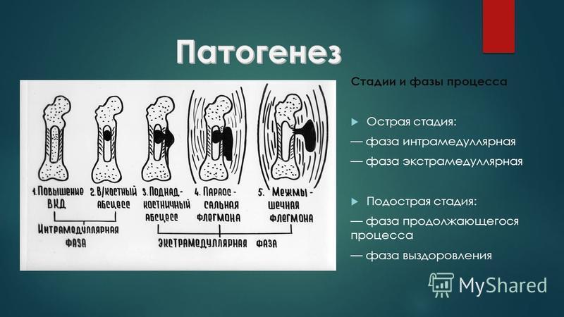 Стадии и фазы процесса Острая стадия: фаза интрамедуллярная фаза экстрамедуллярная Подострая стадия: фаза продолжающегося процесса фаза выздоровления