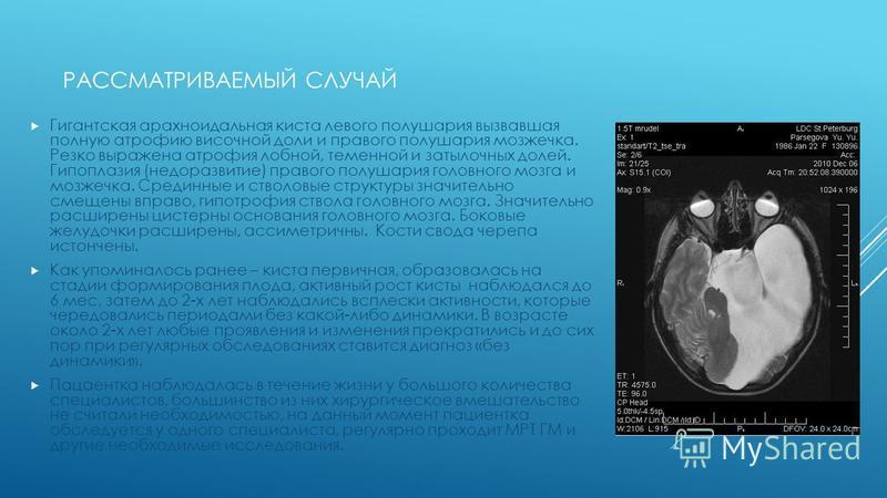 РАССМАТРИВАЕМЫЙ СЛУЧАЙ Гигантская арахноидальная киста левого полушария вызвавшая полную атрофию височной доли и правого полушария мозжечка. Резко выражена атрофия лобной, теменной и затылочных долей. Гипоплазия (недоразвитие) правого полушария голов