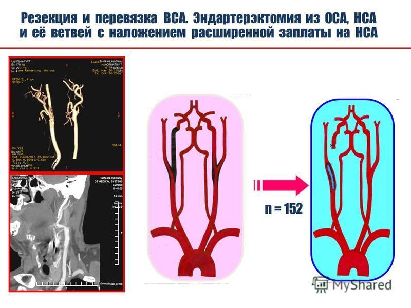С 2008 года нами выполнено операций у больных с окклюзией внутренней сонной артерии 152