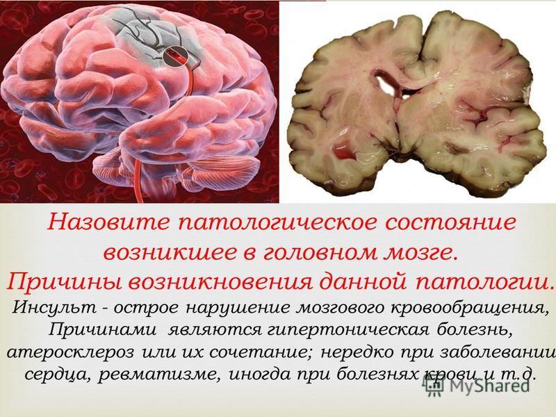 Назовите патологическое состояние возникшее в головном мозге. Причины возникновения данной патологии. Инсульт - острое нарушение мозгового кровообращения, Причинами являются гипертоническая болезнь, атеросклероз или их сочетание; нередко при заболева
