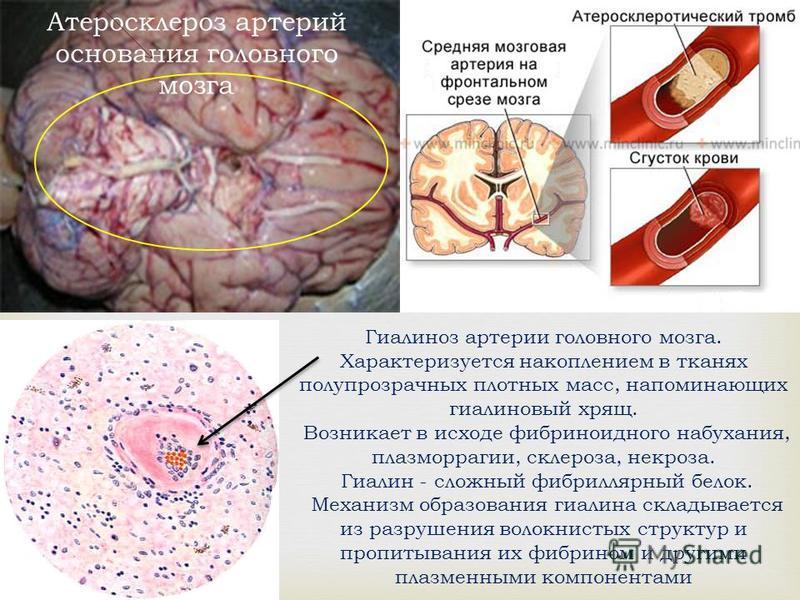 Атеросклероз артерий основания головного мозга Гиалиноз артерии головного мозга. Характеризуется накоплением в тканях полупрозрачных плотных масс, напоминающих гиалиновый хрящ. Возникает в исходе фибриноидного набухания, плазморрагии, склероза, некро