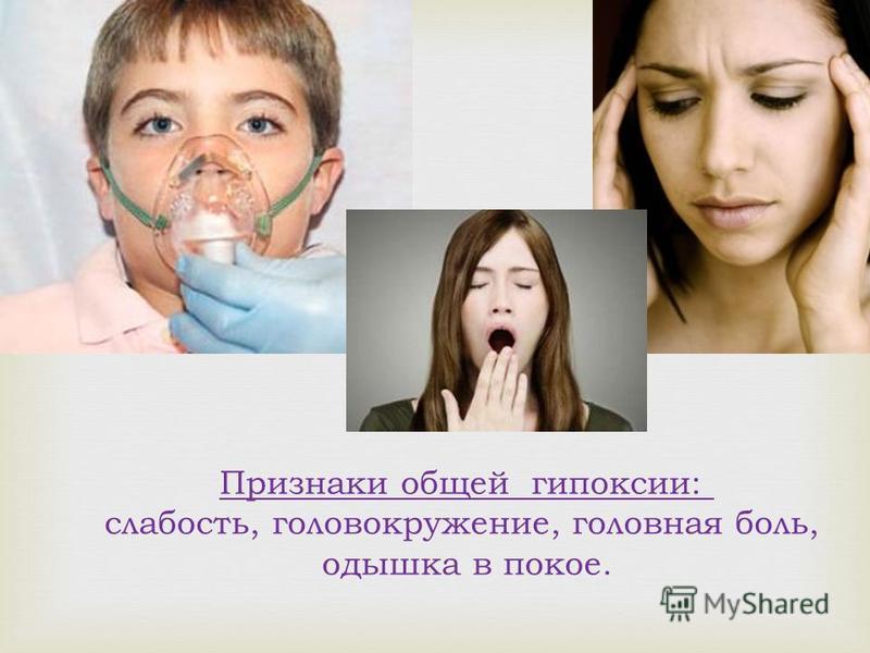 Признаки общей гипоксии: слабость, головокружение, головная боль, одышка в покое.