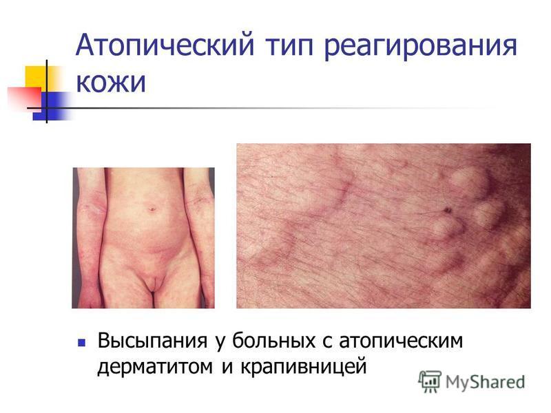Атопический тип реагирования кожи Высыпания у больных с атопическим дерматитом и крапивницей