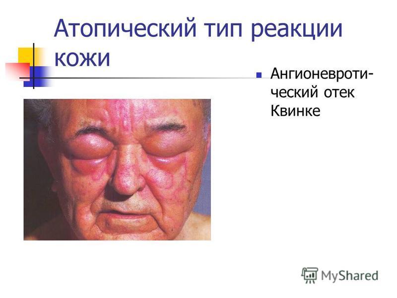 Атопический тип реакции кожи Ангионевроти- ческий отек Квинке