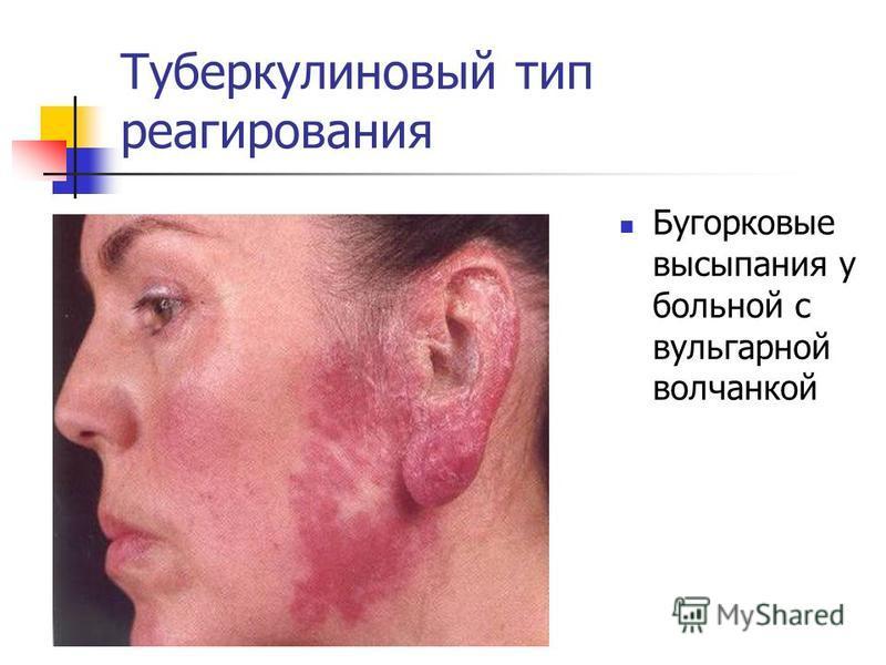 Туберкулиновый тип реагирования Бугорковые высыпания у больной с вульгарной волчанкой