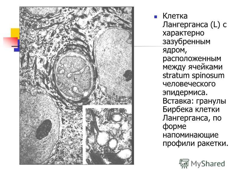 Клетка Лангерганса (L) с характерно зазубренным ядром, расположенным между ячейками stratum spinosum человеческого эпидермиса. Вставка: гранулы Бирбека клетки Лангерганса, по форме напоминающие профили ракетки.