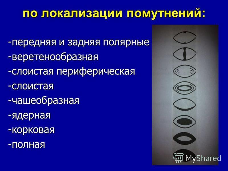 по локализации помутнений: -передняя и задняя полярные -веретенообразная -слоистая периферическая -слоистая-чашеобразная-ядерная-корковая-полная