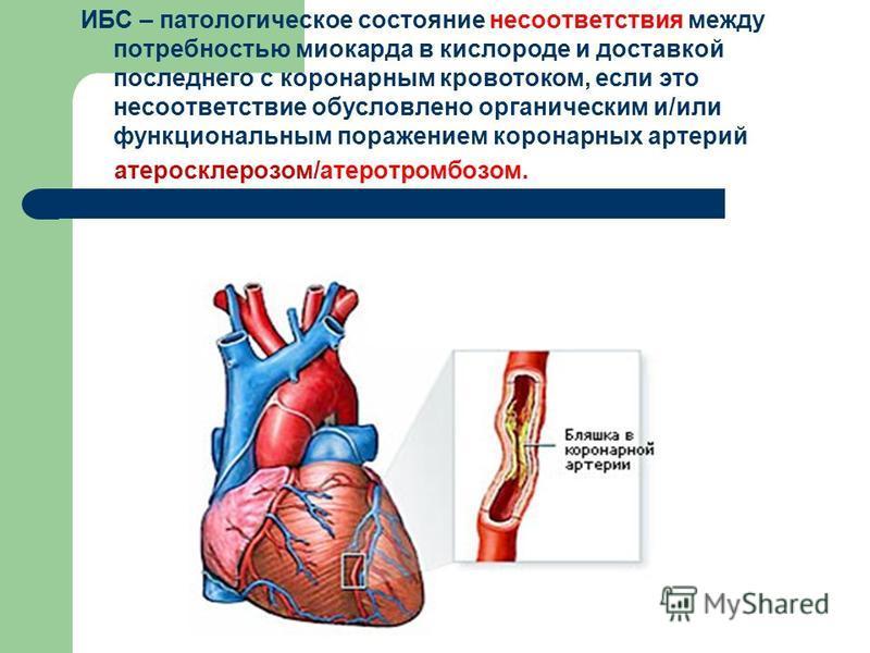 ИБС – патологическое состояние несоответствия между потребностью миокарда в кислороде и доставкой последнего с коронарным кровотоком, если это несоответствие обусловлено органическим и/или функциональным поражением коронарных артерий атеросклерозом/а
