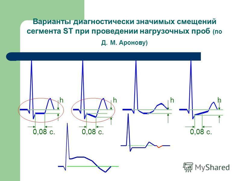 Варианты диагностически значимых смещений сегмента ST при проведении нагрузочных проб (по Д. М. Аронову) h h h h 0,08 c. 0,08 c. 0,08 c.
