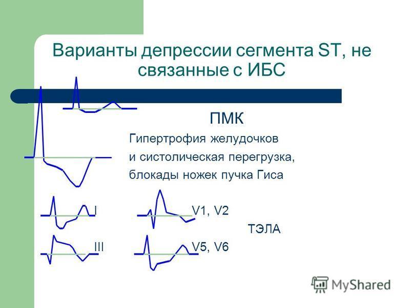 Варианты депрессии сегмента ST, не связанные с ИБС ПМК Гипертрофия желудочков и систолическая перегрузка, блокады ножек пучка Гиса I V1, V2 ТЭЛА III V5, V6